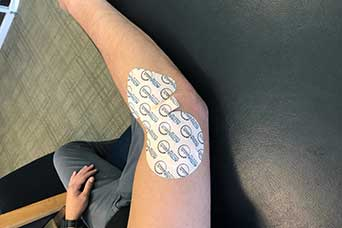 Iontophoresis Vargo Physical Therapy